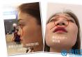 【鼻修复日记】四川成都美莱韩国栋鼻子修复案例 7天重获新生