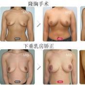 韩国md和migo哪家整形医院隆胸效果好?真实案例对比见分晓