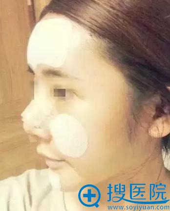 唐山煤医隆鼻术后2天恢复情况
