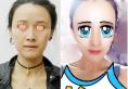 上海喜美鼻综合联合自体脂肪填充案例 看大妈如何逆龄变少女