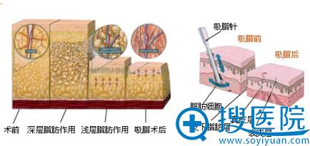 南京康美吸脂手术示意图