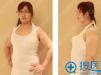 【整形日记】我在南京康美使用360度水动力吸脂减肥的亲身体验