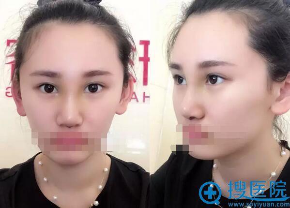 韩式生科假体隆鼻术后5天恢复效果
