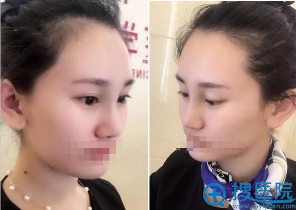 耳软骨垫鼻尖手术7天拆线效果