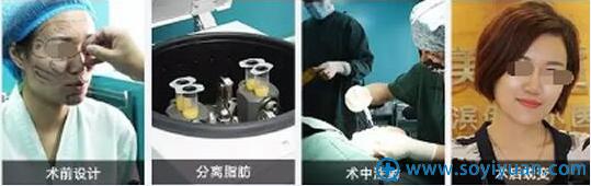 常维国自体脂肪面部填充手术过程