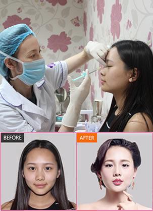 玻尿酸美容效果如何?注射玻尿酸隆鼻和丰唇助钟琪实现明星梦