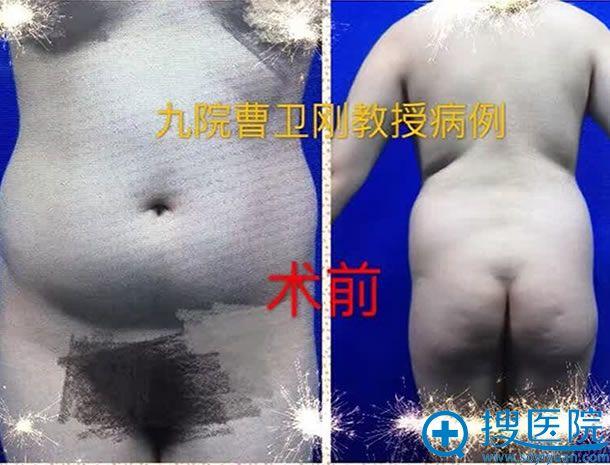 上海九院腰腹吸脂手术效果图