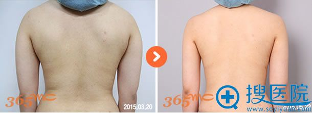 韩国365mc医院腰腹吸脂案例