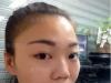 两年前隆鼻失败的我找郑州集美陈曦成功做了自体软骨鼻修复手术