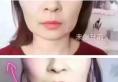 【案例】深圳非凡线雕+玻尿酸强强联合拯救干瘪又塌陷的大饼脸