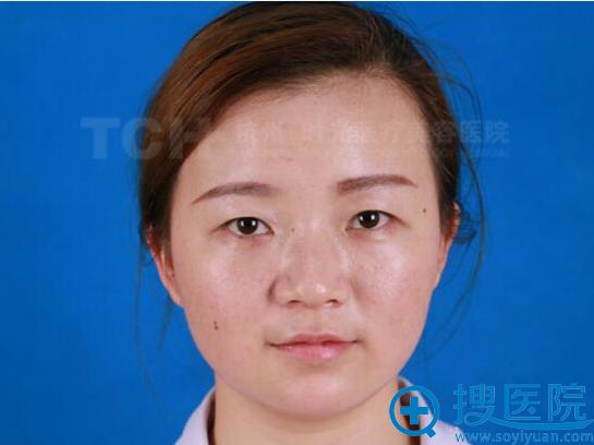 杭州时光整形真人案例 玻尿酸隆鼻和丰下巴后天天被人约!