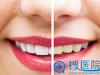 宁波美莱口腔医院牙齿美白方法:皓齿、冷光、牙齿贴面怎么选?