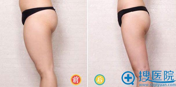 北京中月宏整形医院大腿吸脂案例