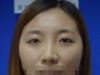 李庸国双眼皮+上睑提肌术后恢复图片解密天津丽人双眼皮怎么样