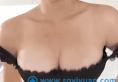 昆明隆胸哪里好 yestar整形医院80后自体脂肪隆胸案例告诉你