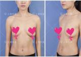 对比了上海华美和伊莱美整形医院的隆胸案例后找谢卫国给我做的