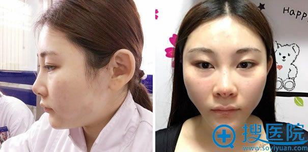 线雕隆鼻手术第1天效果图片