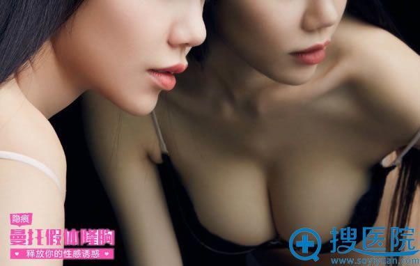 北京做进口曼托假体隆胸需要多少钱