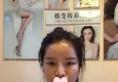 杭州格莱美陈笑双眼皮+隆鼻修复案例 让我术后逆袭成清纯美少女