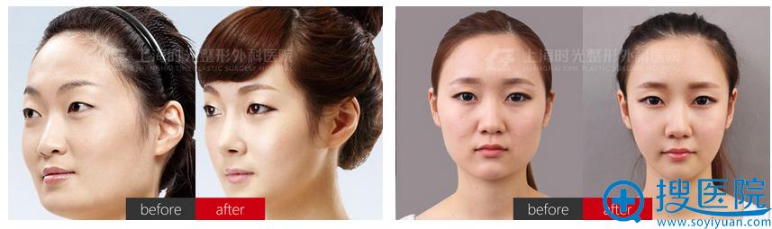 上海时光何晋龙磨骨改脸型案例