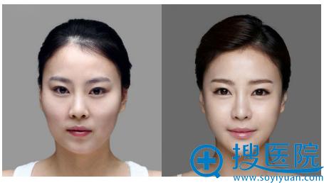 上海华美李志海改脸型案例
