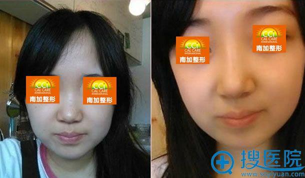 北京南加整形张清峰假体隆鼻案例