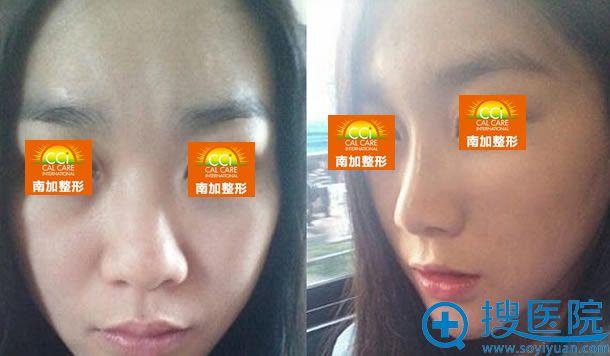 张清峰硅胶假体隆鼻案例图