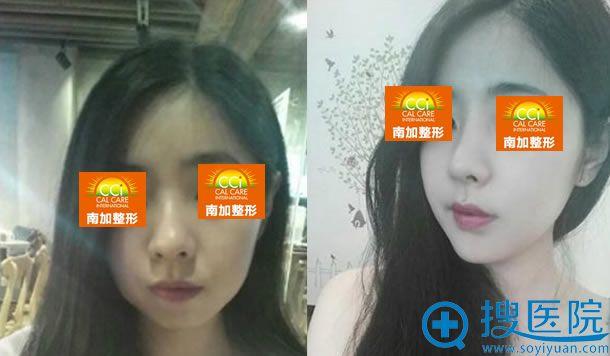 北京南加整形张清峰做鼻子的效果