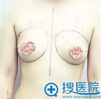 陈声瑾院长画的胸线设计图