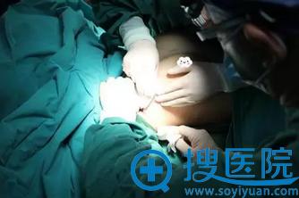 福州名韩内窥镜假体隆胸手术中