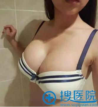 福州名韩陈声瑾内窥镜假体隆胸术后两个月恢复照