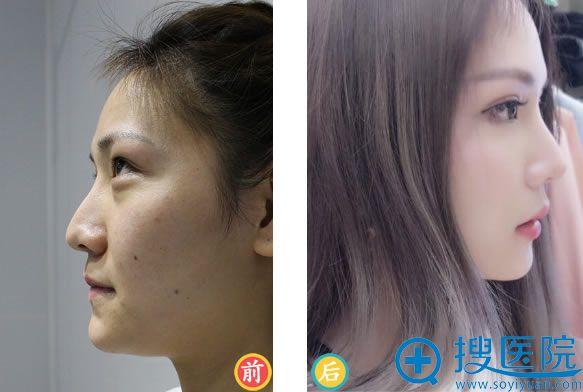 韩啸做鼻子手术效果图