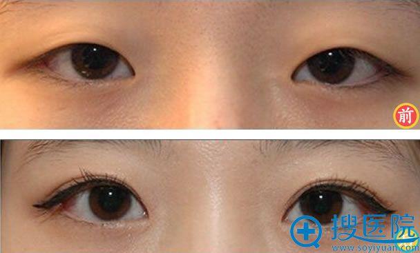 北京金燕子埋线双眼皮案例图