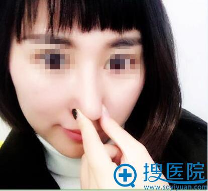鼻梁鼻尖保护模式—真正不怕揉捏
