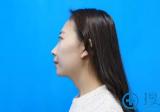 潍坊医学院整形外科杨彪炳膨体隆鼻+隆下巴案例 让我拥有明星脸