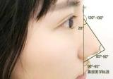 重庆康雅雷晓东仿生鼻雕效果怎么样 2280元隆鼻案例告诉你!