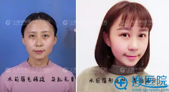 上海华美纹眉前后对比图