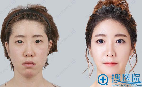 方下巴女生在韩国ID手术前后照片