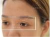 深圳美莱梁志为怎么样?全切双眼皮真人案例恢复过程图为你揭晓
