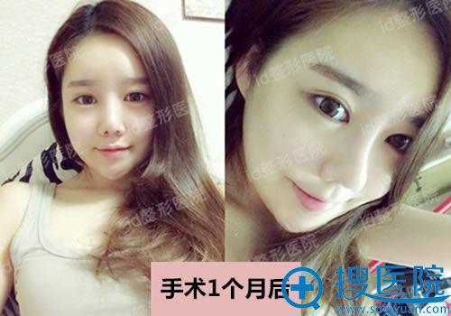 韩国ID做贵族手术1个月照片