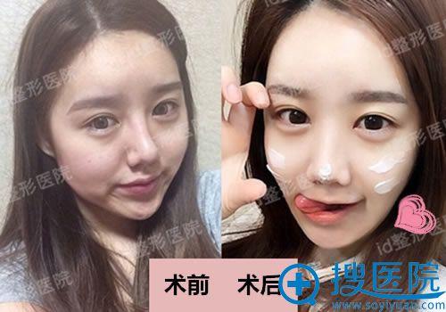 韩国ID医院颧骨手术前后效果对比照片