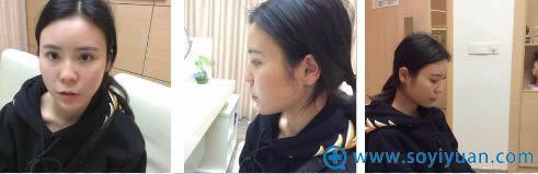 在重庆联合丽格做鼻综合术前照