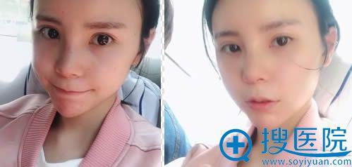 重庆联合丽格隆鼻术后11天恢复效果