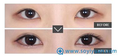 肖海涛双眼皮案例