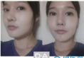 韩国DA整形医院李相雨院长下颌角案例 术后2个月变身芭比娃娃