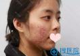 【亲身经历】分享我在重庆华美做激光祛痘印过程图和每天变化图