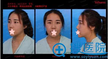 重庆当代邹大龙院长设计双眼皮手术方案