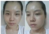 【案例】韩国DA整形医院面部轮廓三件套术后9个月真实恢复日记