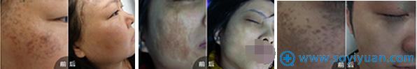 CR-无痛介入祛疤细胞活化术治疗色素疤痕