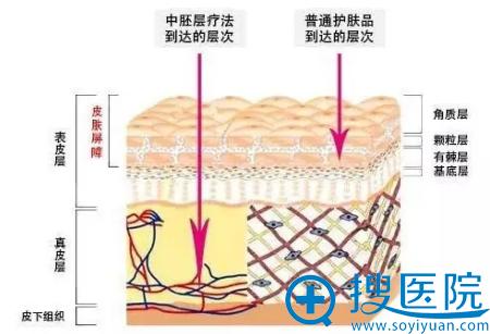 重庆铜雀台嘭嘭小白针治疗示意图